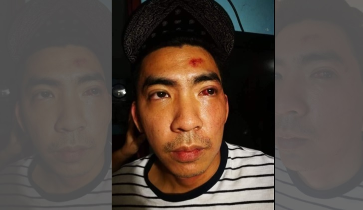 Grab driver seeks justice after getting beat up for returning lost iPhone