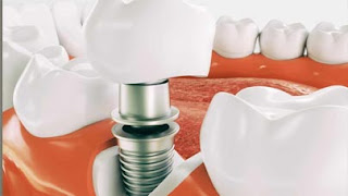 مخاطر زراعة الاسنان والمضاعفات المحتملة
