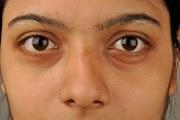 Dark circle hatane ke gharelu upay home remedies - होम रेमेडी डार्क सर्कल के लिए