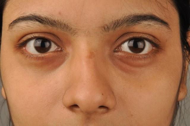 Dark circles home remedies in hindi - आंखों के काले घेरे हटाने के उपाय