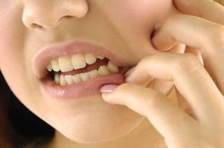 Cara mengobati sakit gigi dengan obat alami