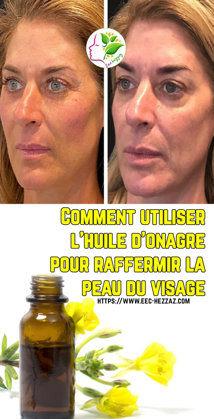 Comment utiliser l'huile d'onagre pour raffermir la peau du visage