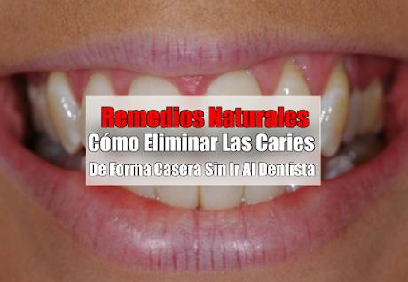 Cómo Eliminar Las Caries De Forma Casera Sin Ir Al Dentista