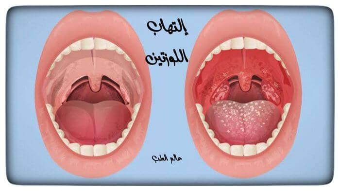إلتهاب اللوزتين الأسباب والأعراض والعلاج عالم الطب