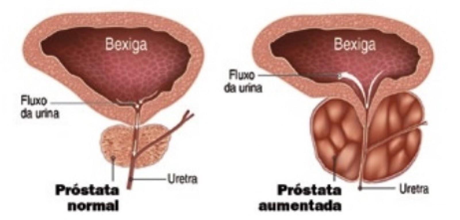 centro cura urologia prostata