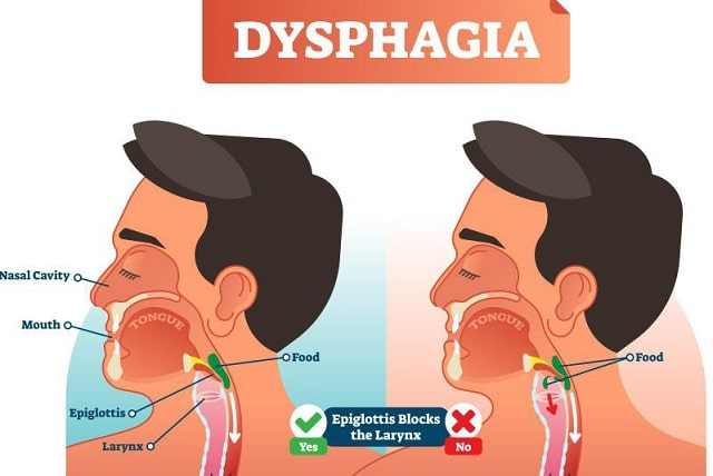 what causes dysphagia trouble swallowing