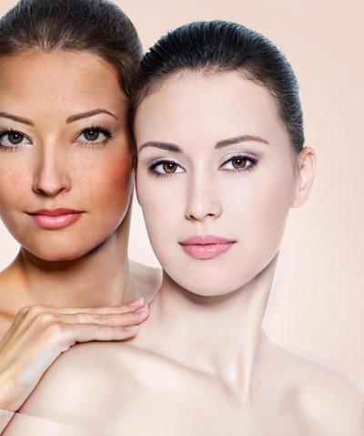 Hướng dẫn cách nhận biết collagen thật và giả chính xác nhất