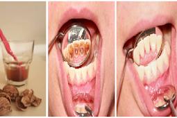 Kalo Tau Semudah ini Gak Perlu Lagi ke Dokter Gigi, Begini Cara Bersihkan Plak/Karang Gigi yang Membandel