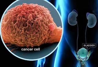 Bladder Cancer Symptoms pictures