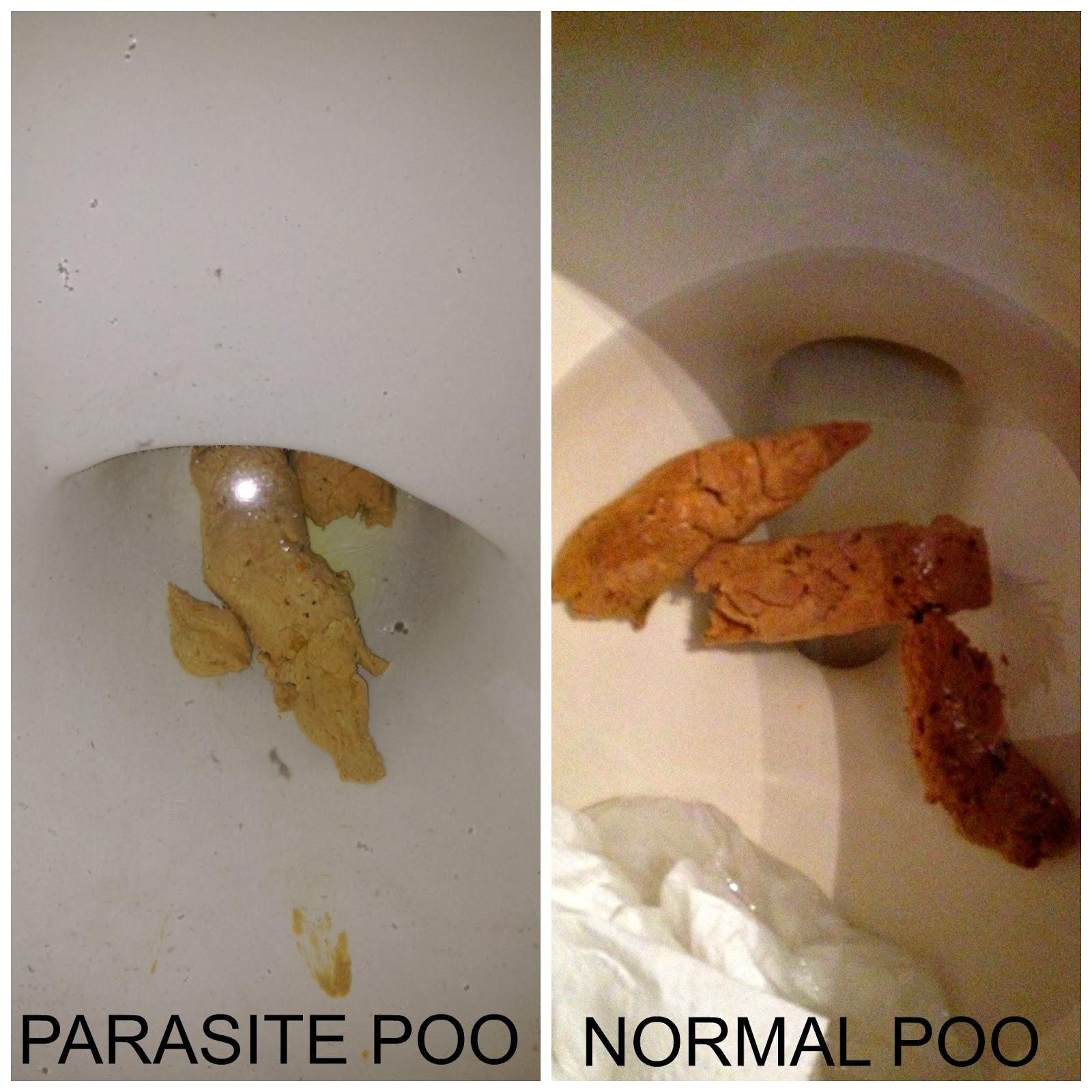 giardia poop arata ca paraziți trematodici în melc