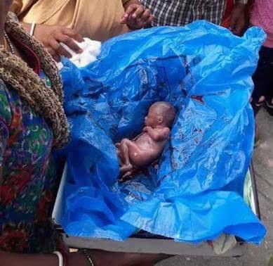 Newborn Baby Found In A Gutter In Lagos