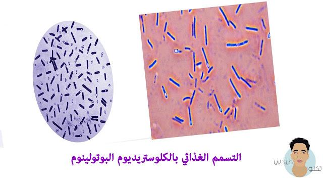التسمم الغذائي بالكلوستريديوم البوتولينوم