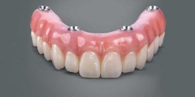 A Brief Look at Dental Implant Manufacturers
