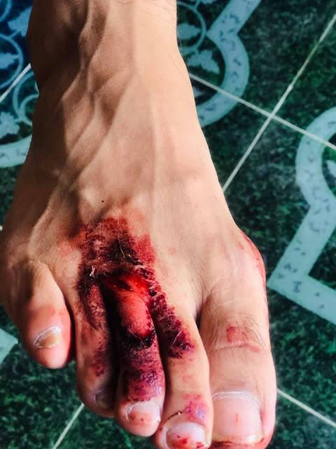 Ataca un pitbull al comediante Pierre David: tiene algunas heridas con tendón expuesto