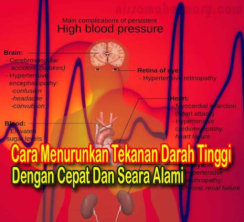 Cara Menurunkan Tekanan Darah Tinggi Dengan Cepat Dan Alami