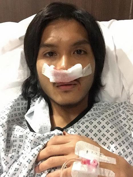Biarpun Sudah 5 Tahun Berhenti Merokok, Hidung Lelaki Ini Masih Terpaksa Dibedah