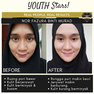 testimoni youth skincare shaklee youth star