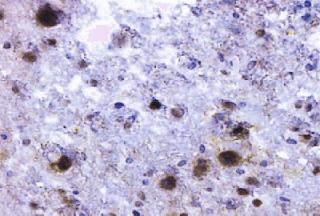 imagem oligodendrócitos positivo vírus JC (JCV)