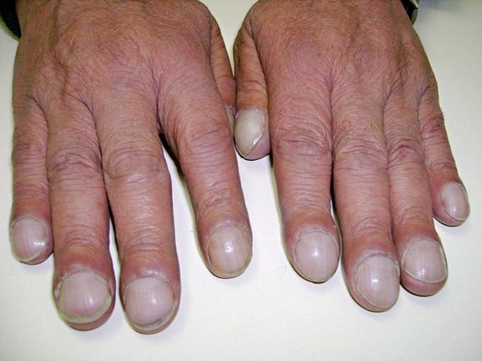 Finger clubbing (acropaquia)