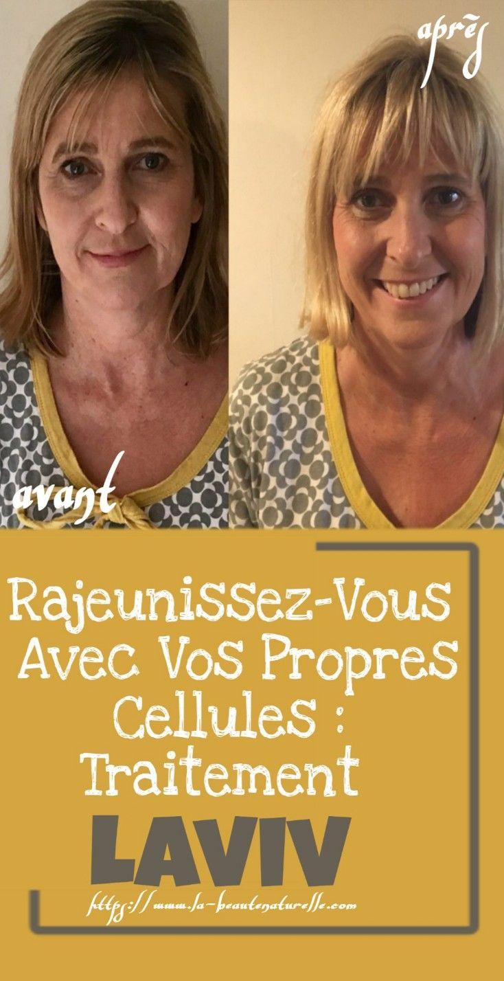 Rajeunissez-Vous Avec Vos Propres Cellules : Traitement Laviv