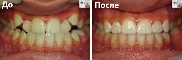 новая методика лечения очень неровных зубов