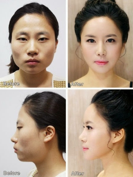 Korean Plastic Surgery: Before and After