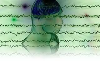 Wiki Antrenarea CREIERULUI cu unde cerebrale DELTA