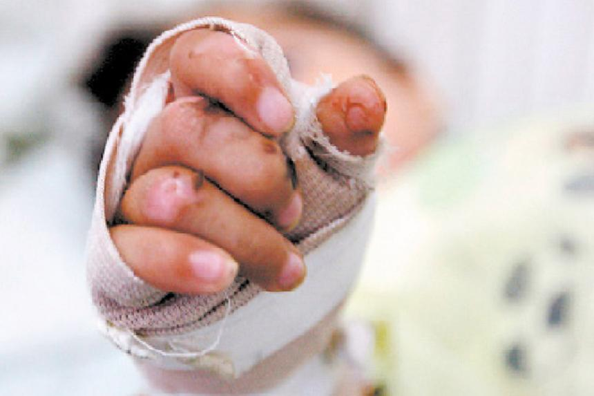 hoyennoticia.com, Seis menores quemados con pólvora en La Guajira