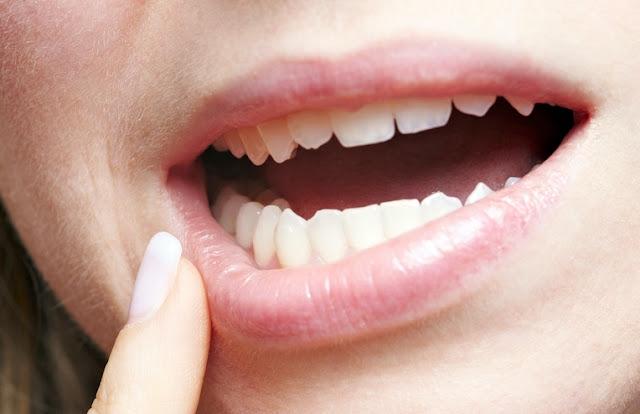 Nazal septum deviasyonu - Diş ve diş eti hastalıklarının sıklığında artış ...