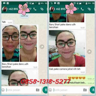 Testimoni Dan's Secret Skincare Original
