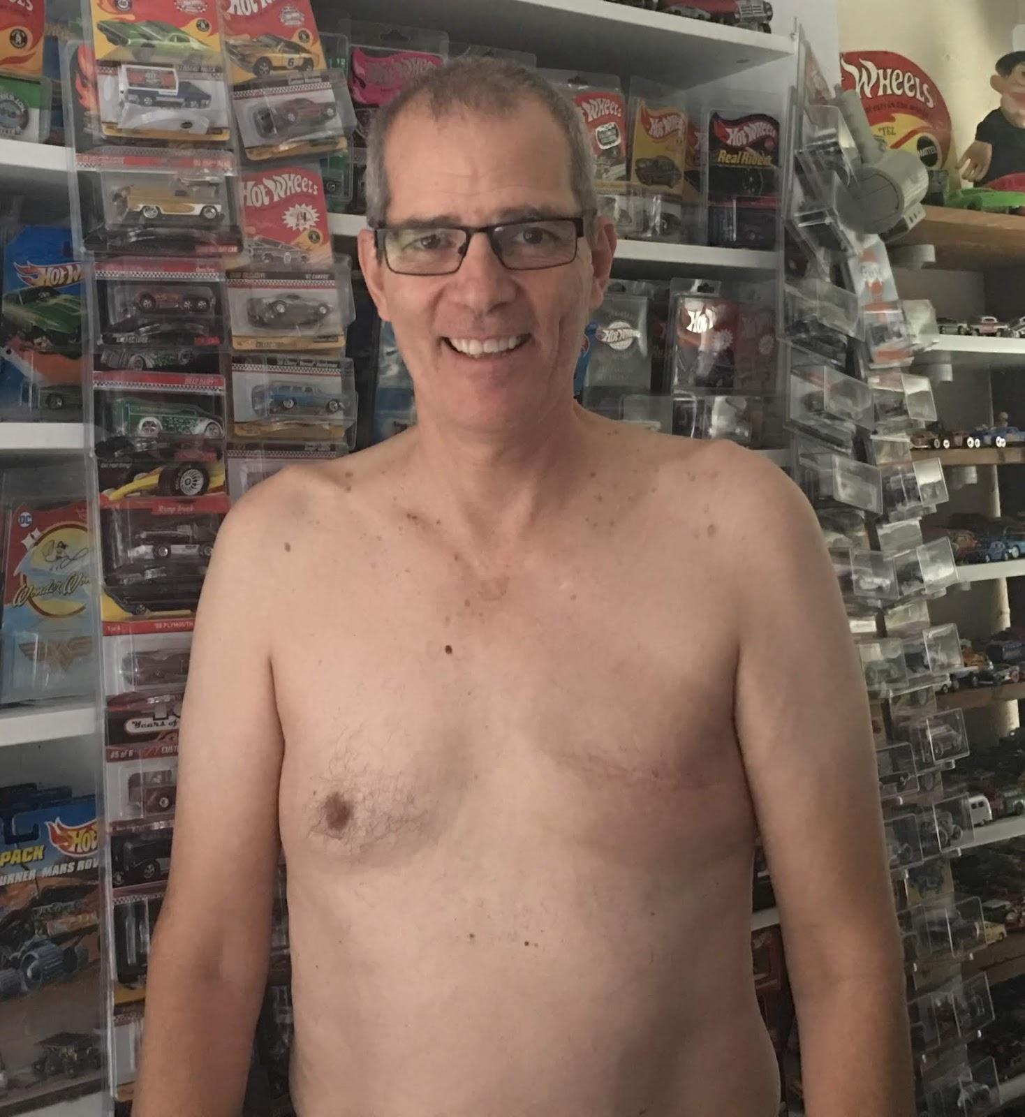 John post-mastectomy