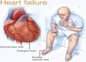 Obat Herbal Gagal Jantung Kongestif
