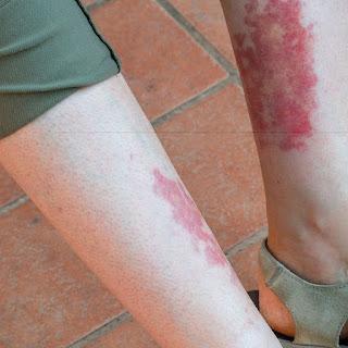 1. vaskulitis dapat menyebabkan oklusi pembuluh darah perifer.