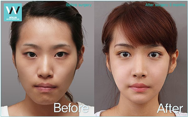 how to make nose thinner without surgery