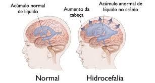 La acumulación anormal de líquido cefalorraquídeo alrededor del cerebro se conoce como