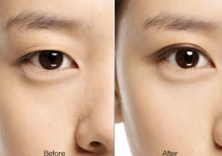 Different Types Of Eyelid Surgery In Goa | Medical Tourism In Goa