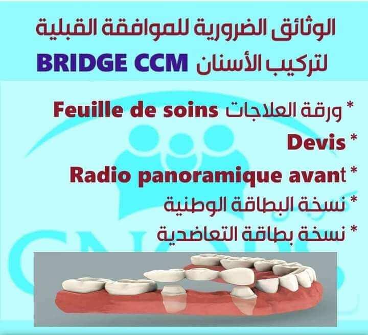 وثائق الموافقة القبلية لتركيب الأسنان Bridge CCM