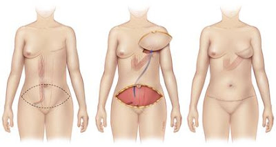 breast reconstruction with flap surgery
