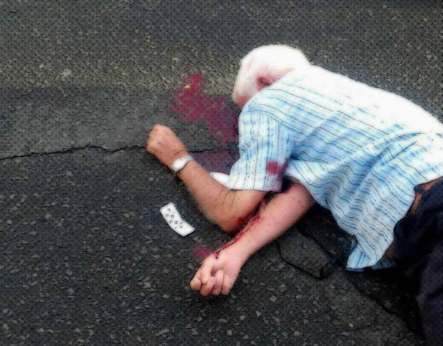 Um idoso morreu atropelado logo após atendimento na UPA, hoje em Juazeiro - Portal SPY