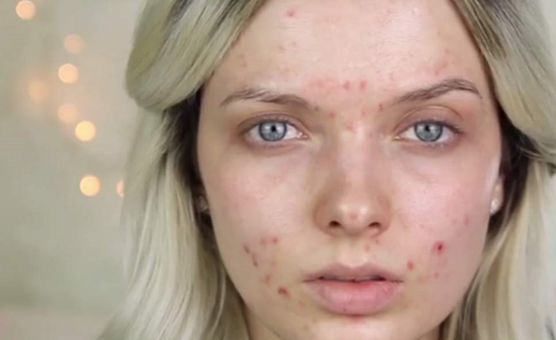 How to Clear Up Active Acne Fast