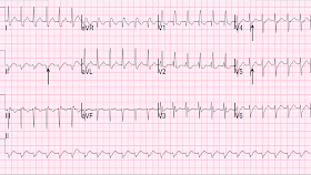Dr Smith S Ecg Blog Paroxysmal Svt Psvt That Repeatedly Recurs In Spite Of Successful Conversion With Adenosine