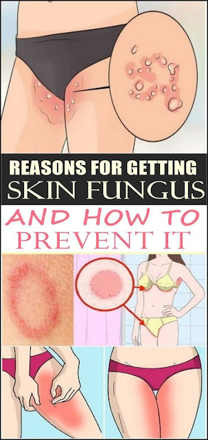 Reasons For Getting Skin Fungus And How To Prevent It