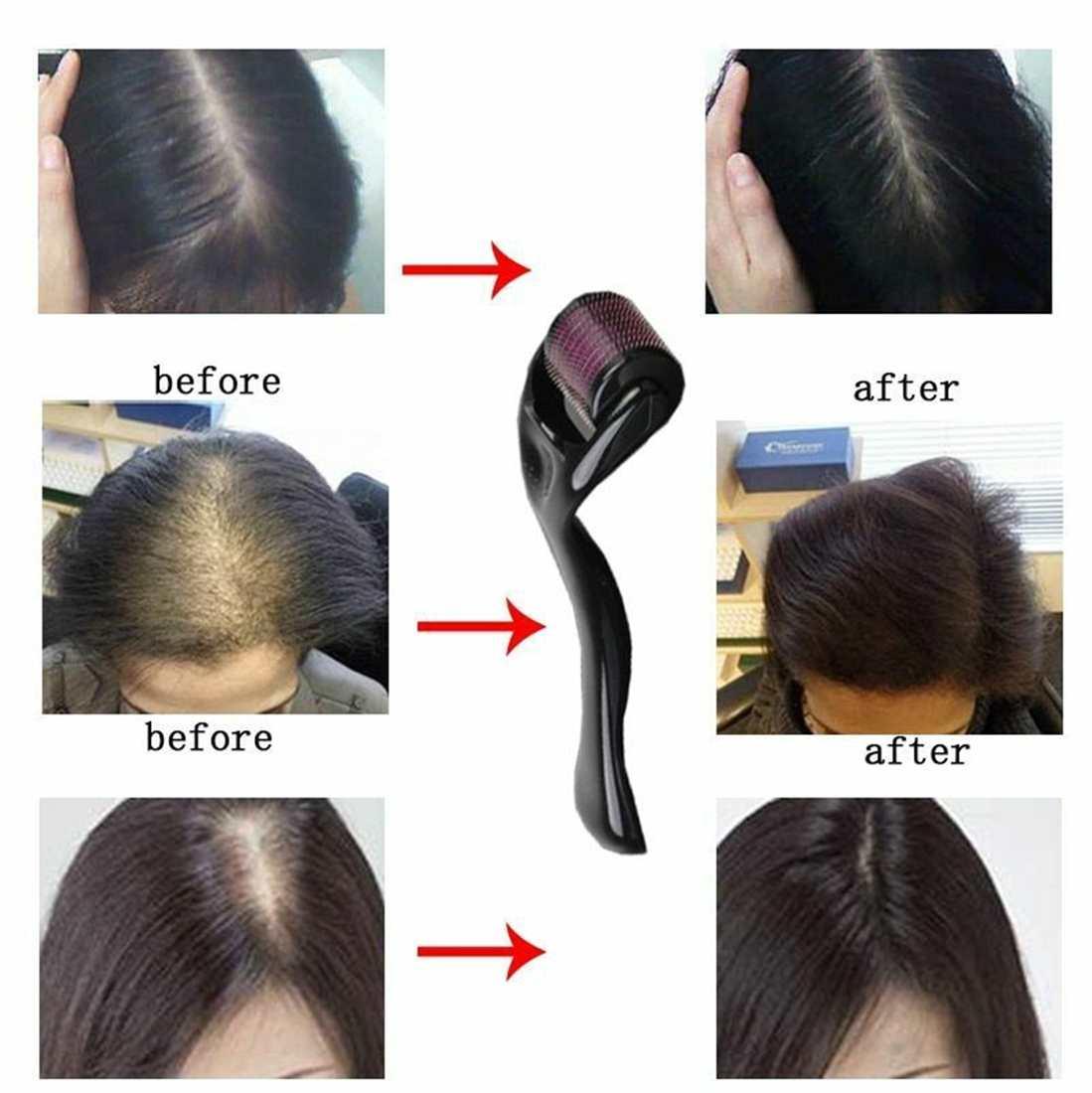 Anti-hair-loss-treatments