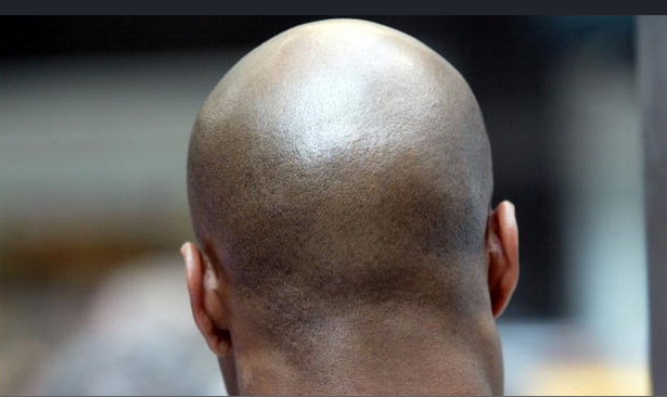 Coronavirus likely to affect more of Bald men than others