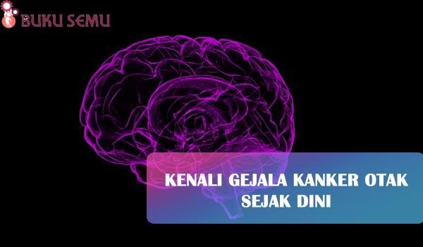 Kenali Gejala Kanker Otak Sejak Dini, bukusemu