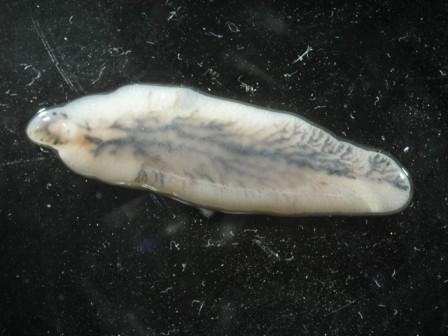 trematode fascioliasis