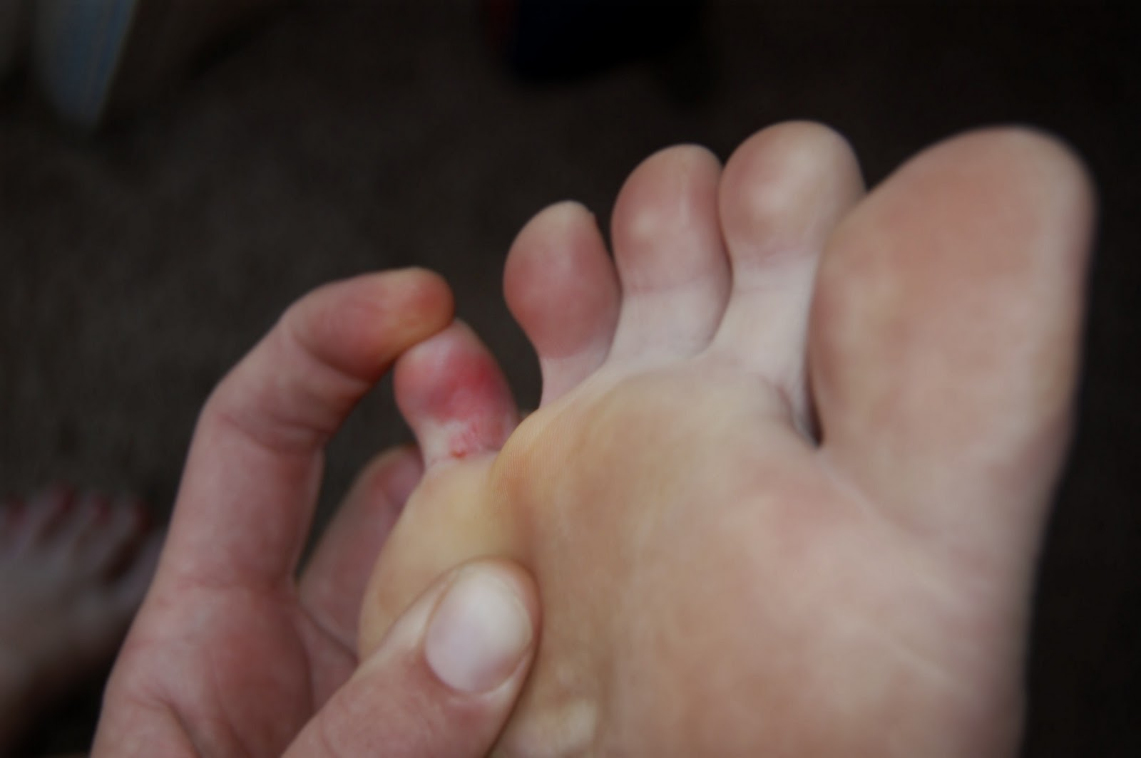 Sharp and Shooting Pain in the Little Toe