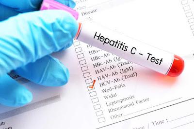 Pentingnya Vaksinasi atau Imunisasi Hepatitis