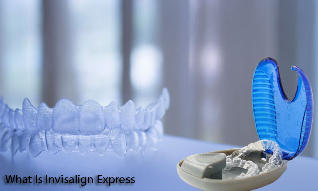 What Is Invisalign Express