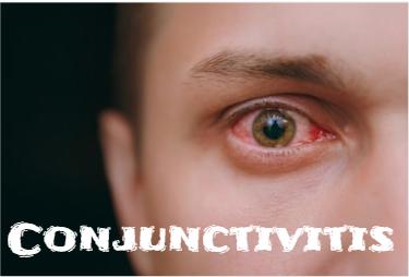 [Health Tips] आंख आने पर करे घरेलू इलाज़